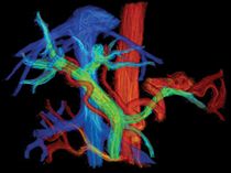 4D flow MRI