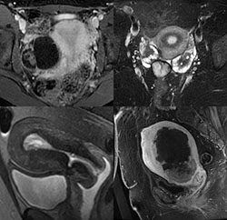 4-quadrant image with examples from gynecologic imaging