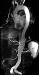Image of Aortic Dissection MRA