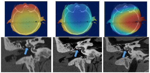 top row shows 3 saggital images of the head with rainbow colorscale showing areas affected by ionizing radiation. bottom row shows 3 correlated temporal bone anatomy scans in black and white, with blue arrows indicating key location