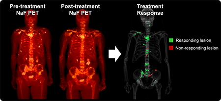 Image shows 3 full body scans. First two are pre- and post-treatment NaF PET. The third is a differential composite of the first two, which highlights responding and non-responding lesions. Most lesions show as green, or responding.