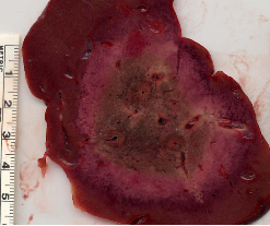 RF multiple probe in liver lesion
