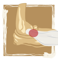medical illustration of joint