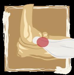 medical illustration of joint